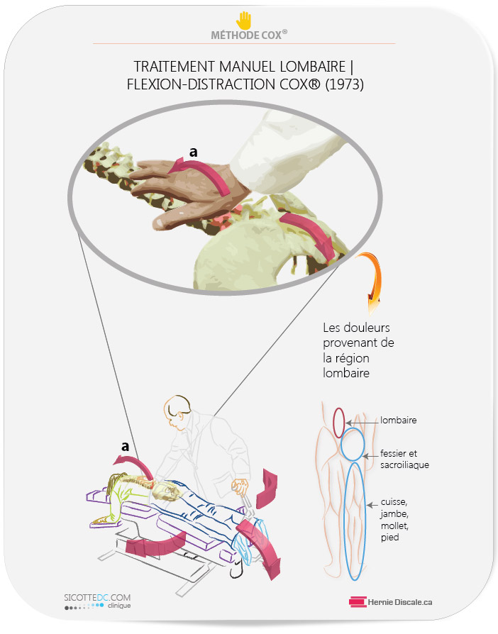Contact manuel du chiropraticien clinicien sur l'aphophyse lombaire L5 durant un traitement de la méthode Cox.