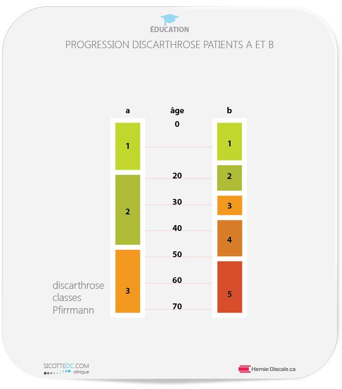 Discarthrose age physiologique versus discarthrose