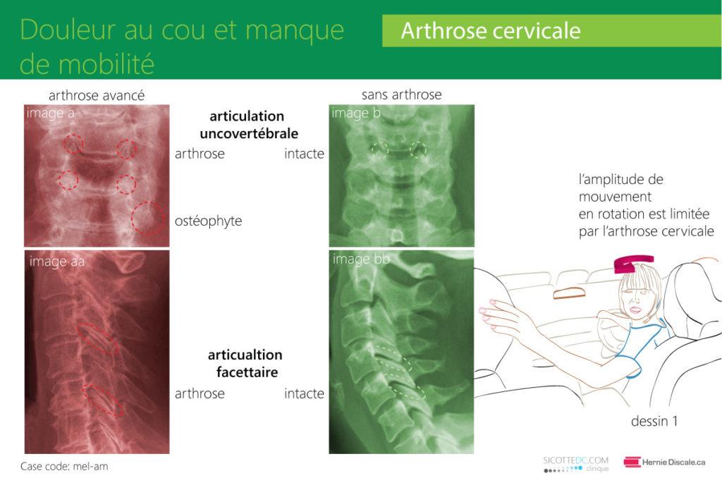 L'arthrose cervicale et le manque de mobilité. Douleur et traitement recommendations.