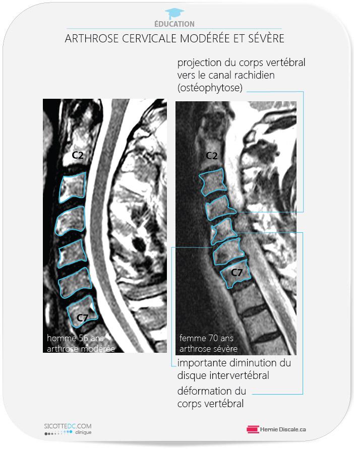 Arthrose cervicale moderée et sévère. La comparaison de l'IRM. Homme et femme. Discartrhose cervicale.