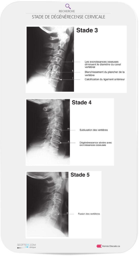 Les stades 3, 4 et 5 de l'arthrose cervicale.