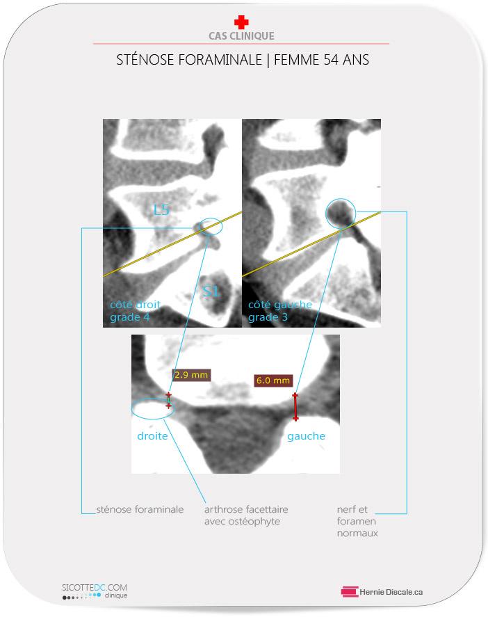 CT scan démontre de l'arthose facettaire lombaire ce qui cause une sténose foraminale L5-S1 de grade 3 et 4.