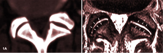 Arthrose facettaire lombaire stade 0 IRM.