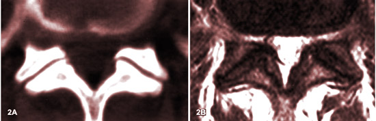 Arthrose facettaire lombaire stade 1 IRM.