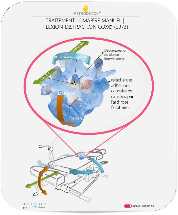 Arthrose lombaire et adhésions facettaire. La relâche des adhésions capsulaires causées par l'arthrose facettaire. Flexion distraction lombaire manuel.