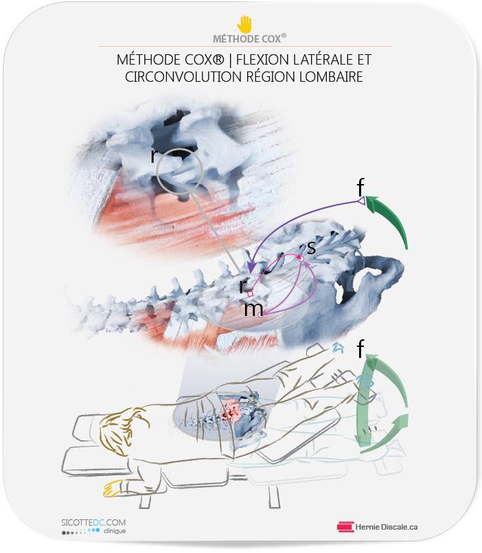 Le fonctionnement du traitement naturel Cox pour discopathie dégénérative. Les effets du spasm musculaire.