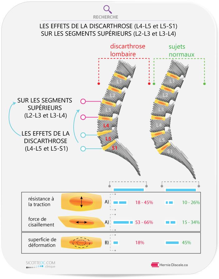 Les effets du discarthrose (disopathie) (L4-L5 et L5-S). Le soins naturel Cox pour maintenir la mobilitée.