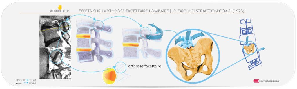 Les flexions distraction de la méthode Cox pour arthrose facettaire lombaire.