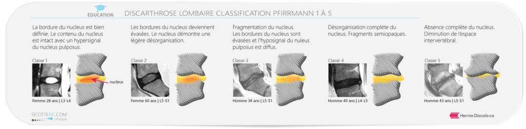 La classification Pfirrmann des disques intervertébrale lombaire.