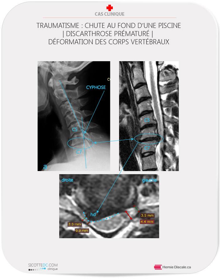 Discarthrose cervicale. La cause chute sur le front (tête). Dégénéresence prématurée de la colonne cervicale.