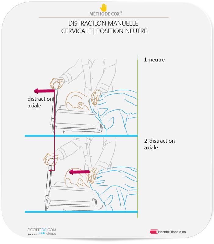 Distraction Cox manuelle pour sténose spinale cervicale et douleur au bras.