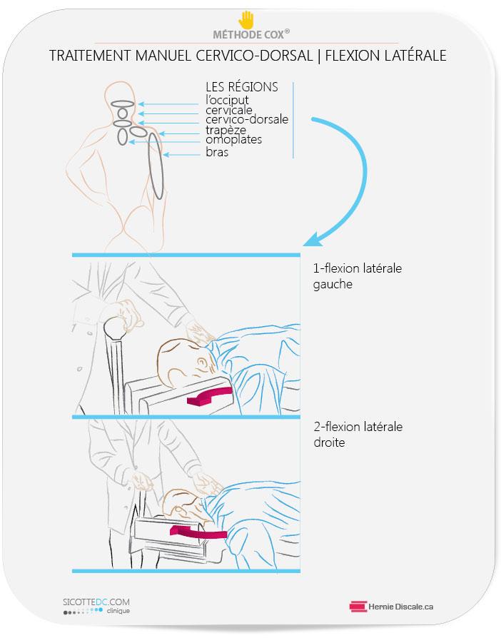 La distraction cervicale Cox. Région cervico dorsale et douleur entre les omoplates.