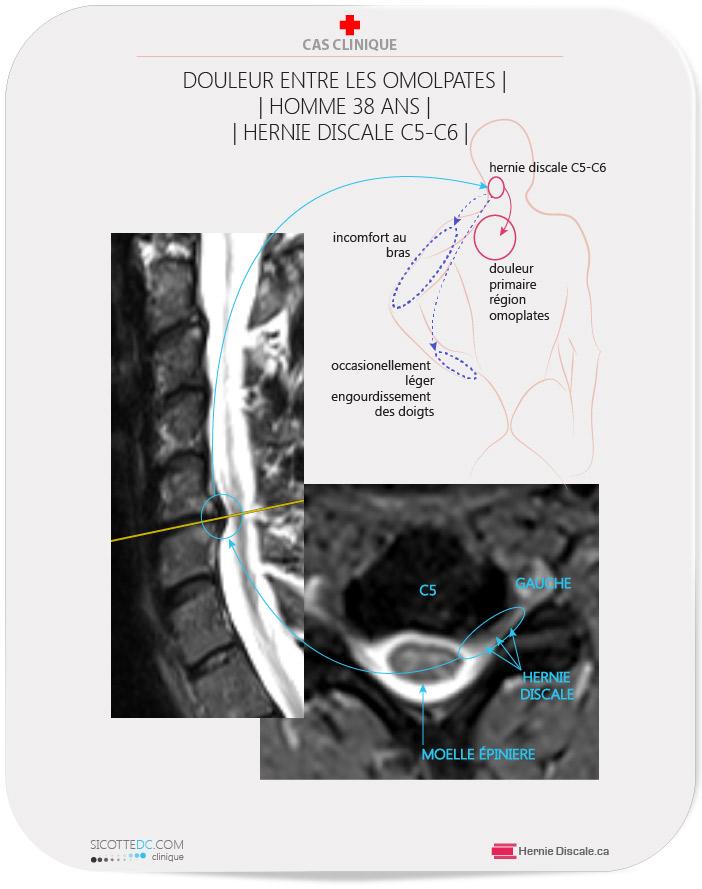 Patient avec douleur entre les omoplates. La cause une hernie discale cervicale C5-C6. Le traitement naturel : Méthode Cox® flexion distraction.