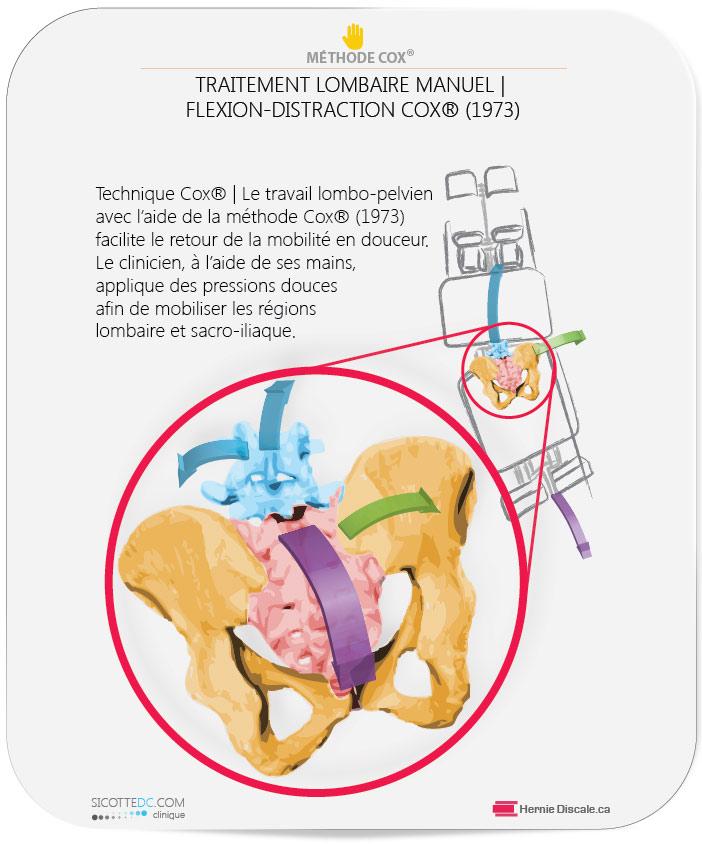 Douleur sacro-iliaque traitement naturel avec la méthode Cox®