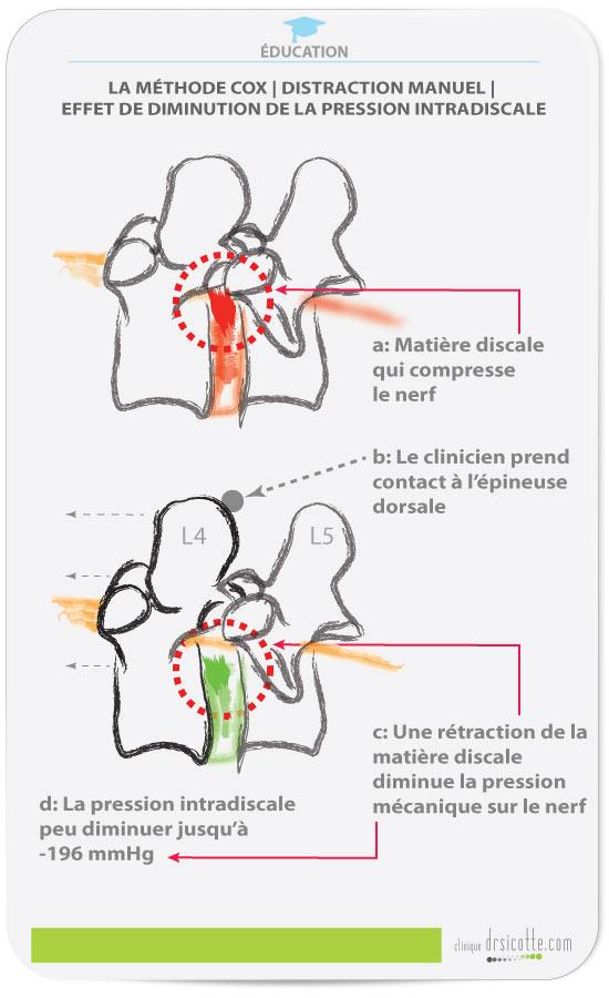 Les effets de la méthode Cox sur la pression intradiscale et la resorption de la matiere discale.