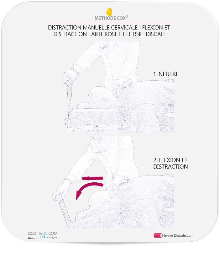 La flexion distraction méthode Cox pour arhtrose cervicale et hernie discale.