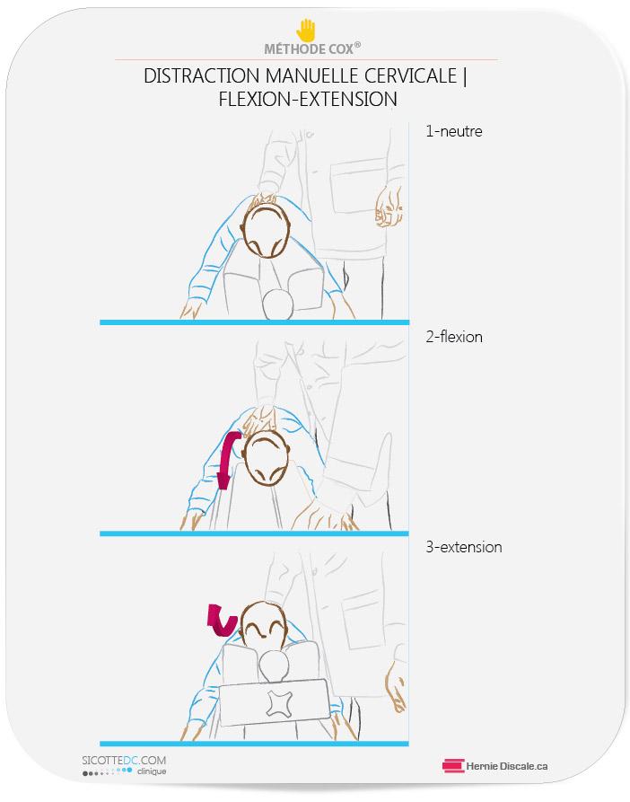 La méthode Cox pour les douleurs au cou. Ici la flexion-extension-rotation-flexion laterale manuelle.