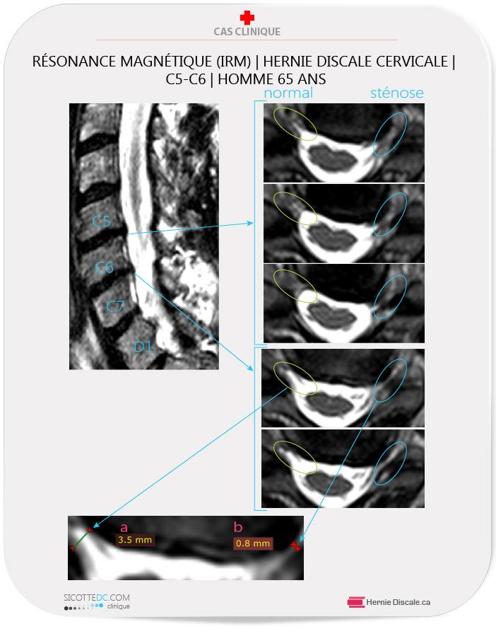 Hernie discale cervicale C5-C6. Homme de 56 . Analyse IRM imagerie par resonance magnetique.