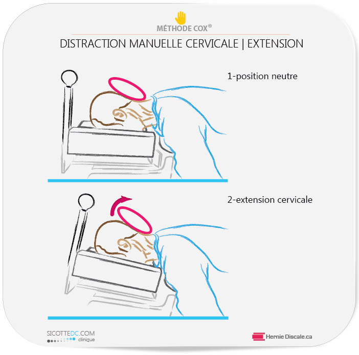 Extension cervicale pour patient qui souffre discarthrose cervicale.