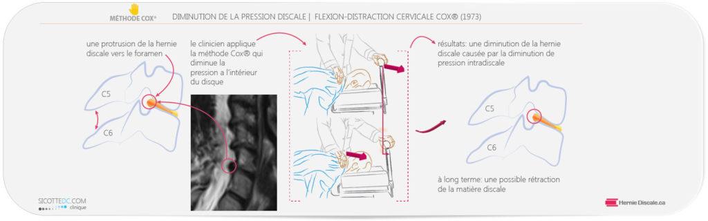 Example de decompression avec la méthode Cox pour la sténose spinale et foraminale.