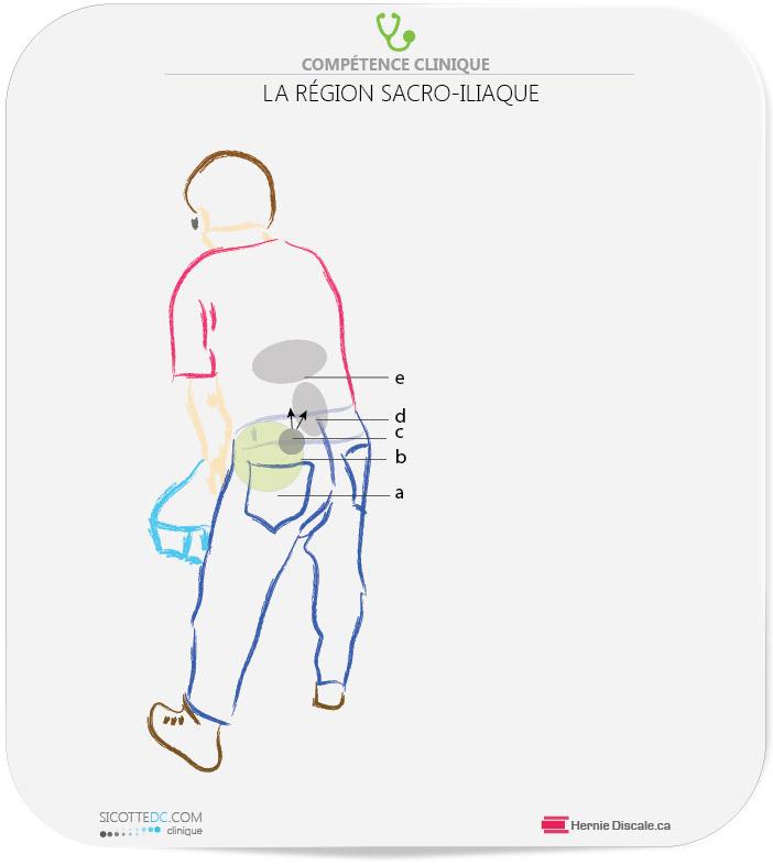 Symptômes sacro-iliaque localisation de la douleur