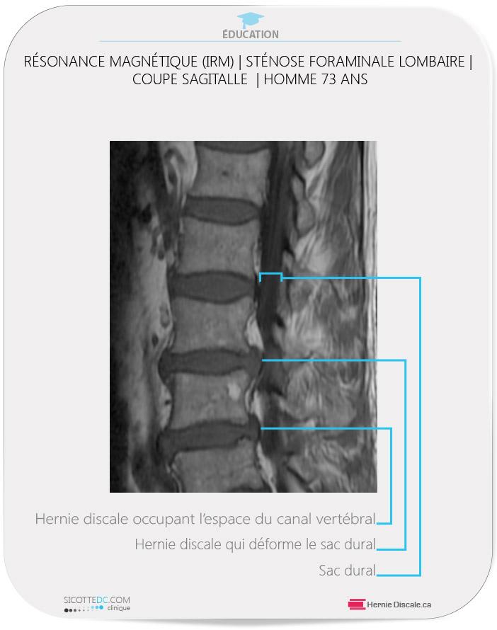 IRM - MRI Axial - Hernie Discale L4-L5. Résonance magnétique (IRM)  | example de sténose foraminale lombaire coupe sagitalle