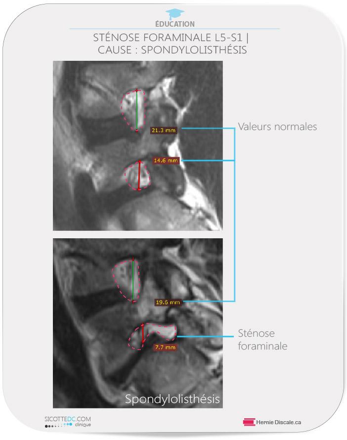 Une sténose foraminale lombaire causer par une spondylolisthésis lombaire L5-S1