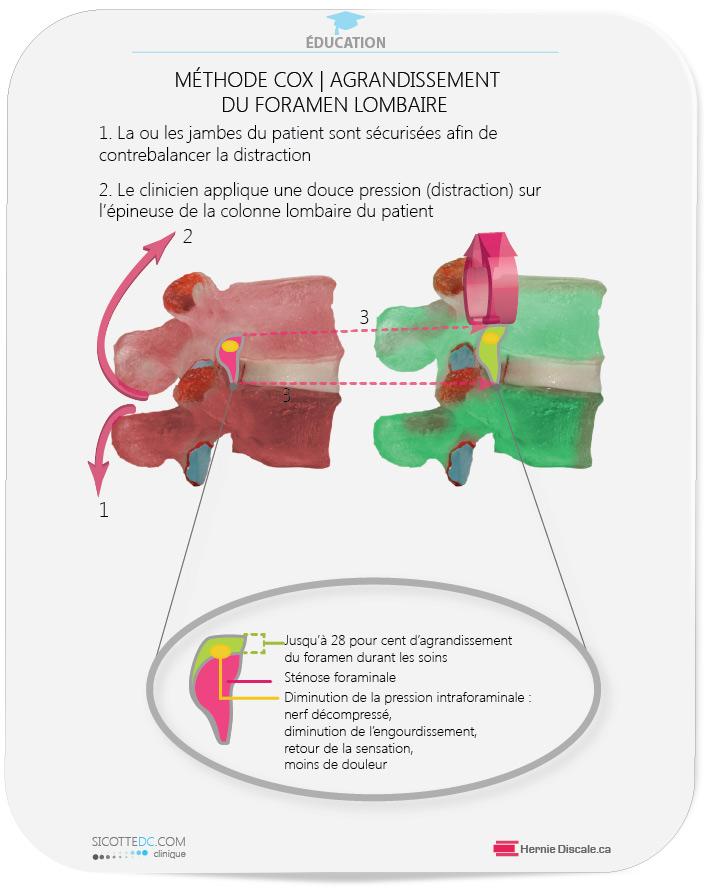 La sténose foraminale effet des distractions Cox.
