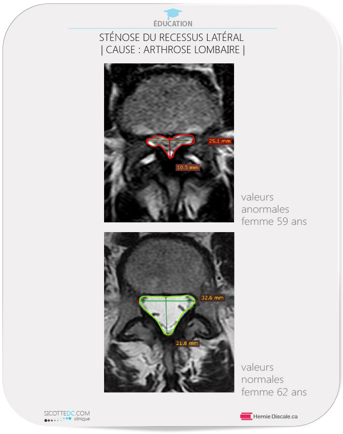 La sténose du récessus causée par arthrose facettaire lombaire.