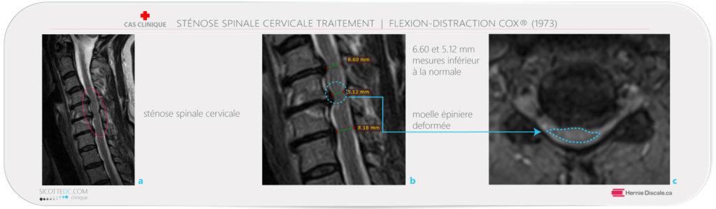Position neutre IRM cervicale stenose spinale cervicale sévère dimension du canal.