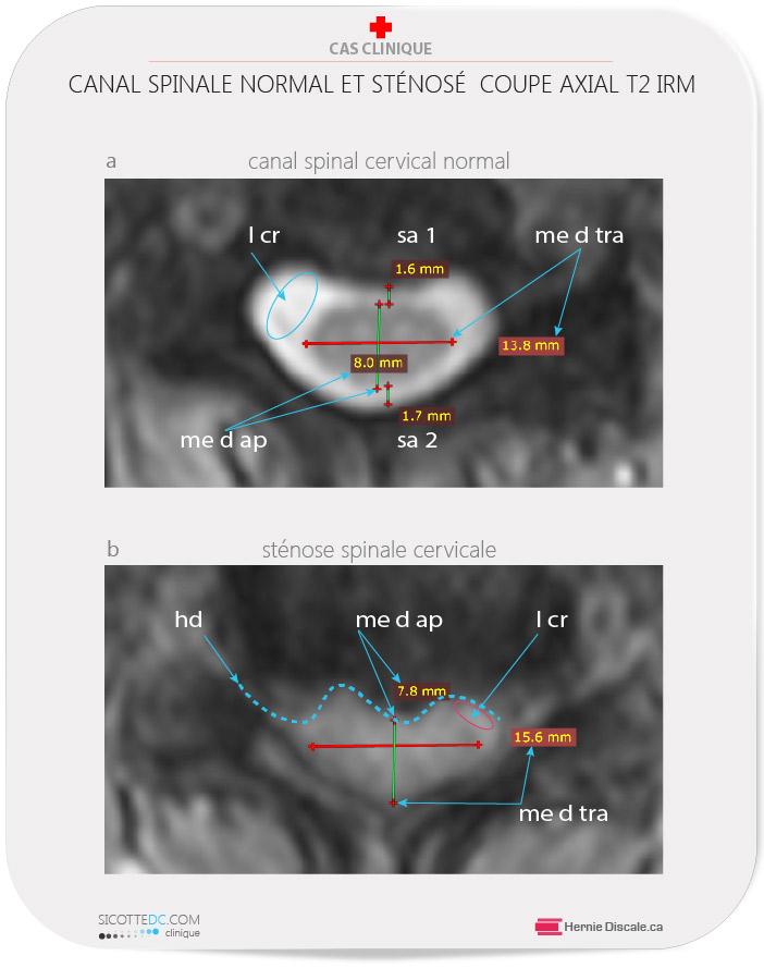 IRM et sténose spinale cervicale coupe axial les dimensions appropriées.
