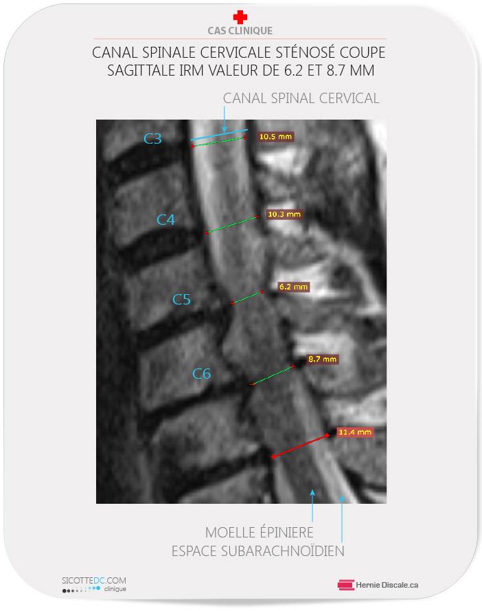 Le canal spinal cerivcale sténosé. Coupe sagittale IRM .