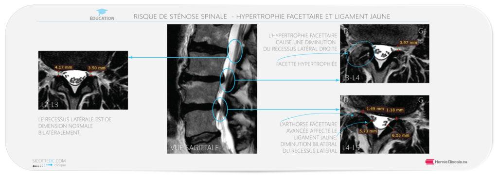 Hypertrophie du ligament jaune et facette. Contribution à la sténose spinale lombaire.
