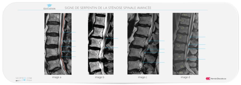 La sténose spinale lombaire sévère signe IRM.