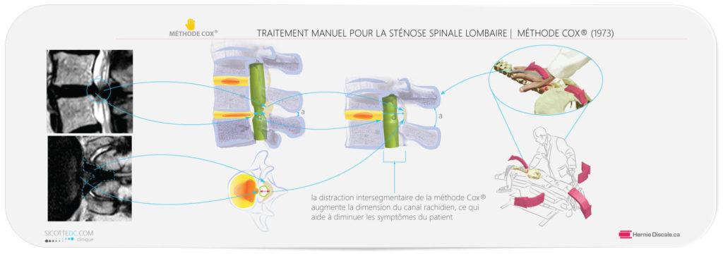 Le traitement de la sténose spinale lombaire avec la méthode Cox®.